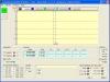 30-meter 10.1 tot 10.15 MHz  hoogohmig